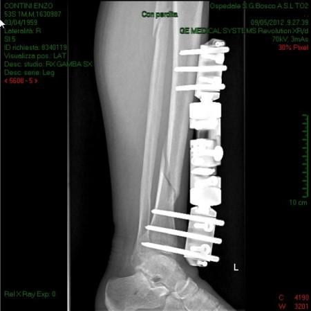 Radiografia con fissatore (9/5/2012)